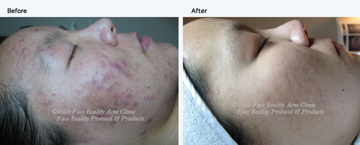 Houston Acne Specialists